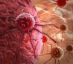 Descubren una nueva diana terapéutica para tratar la metástasis en el cáncer