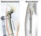 Un nuevo sistema permite alargar huesos sin fijadores externos