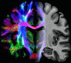 El cerebro mide 150.000 kilómetros