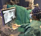 La CUN obtiene un 97% de éxito en el control del tumor de próstata con terapia focal