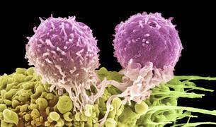 Imagen de unos linfocitos T, células del sistema inmunitario, pegadas a una célula cancerígena, vistas a través de un microscopio electrónico.