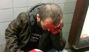La imagen del agredido ha sido compartida a través de las redes sociales.