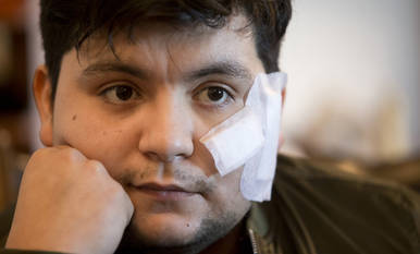 """""""Me gustaría que el que me cortó sepa que me ha paralizado la cara"""""""