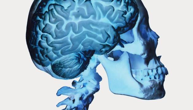 Gracias a la utilización de técnicas de neuroimagen, la doctora Helen Fisher determinó que la actividad neuronal es distinta según se trate de amor, apego a la pareja o deseo sexual