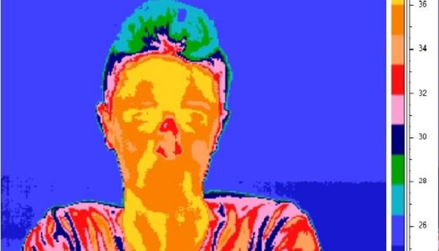Imagen de la termografía