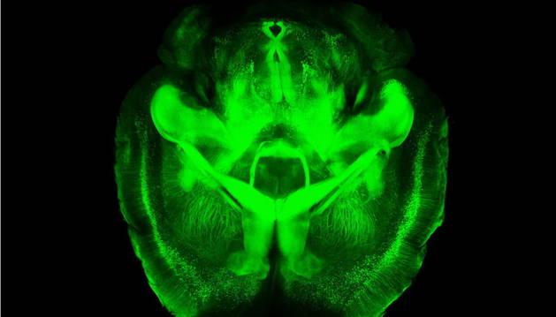 Representación tridimensional del cerebro aclarado