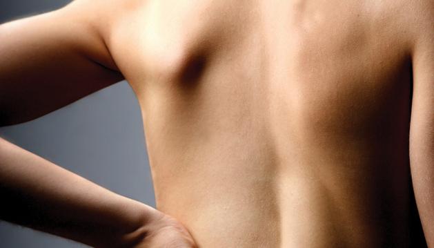 Según la Organización Mundial  de la Salud (OMS), el dolor de espalda afecta al 20 por ciento de la población