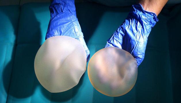 Un cirujano muestra el aspecto de las prótesis mamarias PIP.