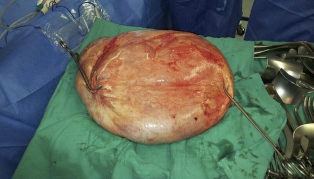 Fotografía facilitada por el Hospital de Torrevieja del tumor benigno de 25 kilogramos que se ha extraído con éxito del ovario de una mujer de 47 años