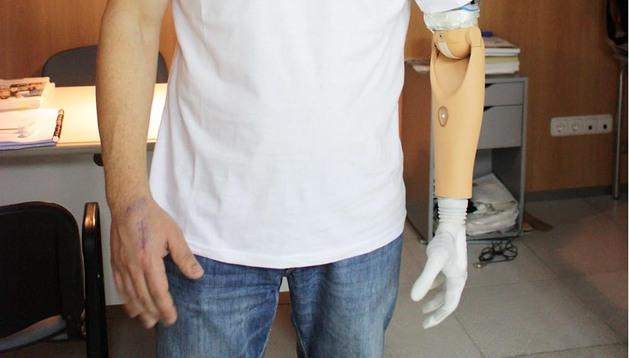 Ricardo Almoguera García, de 34 años, con su nueva mano biónica en el brazo izquierdo