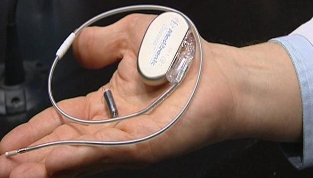 Imagen del marcapasos más pequeño del mundo