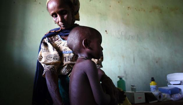 Un niño espera para recibir asistencia sanitaria en Yaloke (República Centroafricana)