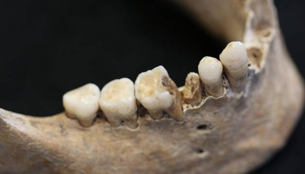 Caries que afecta el primer molar inferior derecho, que ha destruido también toda la pieza contigua