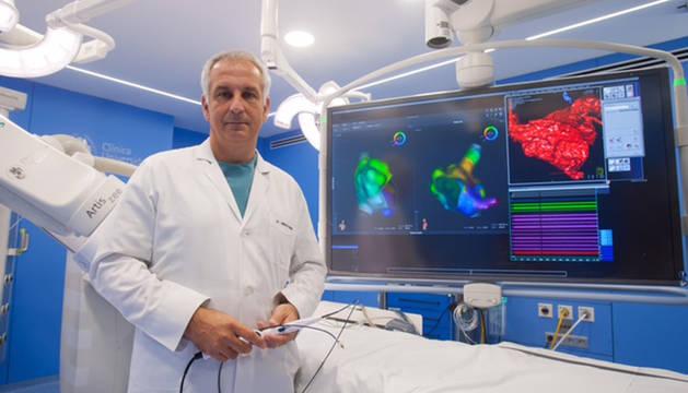El doctor Ignacio García Bolao, director de Cardiología de la Clínica Universidad de Navarra, muestra el nuevo navegador para el diagnóstico más preciso de las arritmias.