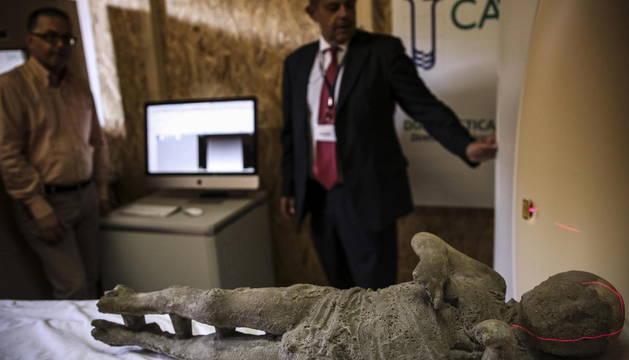 Una momia de Pompeya es examinada mediante una tomografía axial computarizada en Pompeya.
