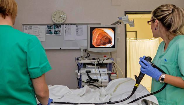La detección precoz de cáncer de colon en Estella localiza 16 tumores