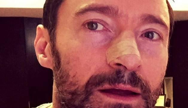 Hugh Jackman, operado de nuevo por cáncer de piel