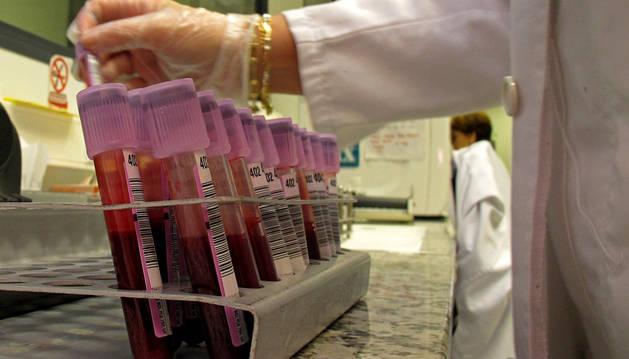 Un técnico del laboratorio de Estella toma una muestra de sangre para analizar.