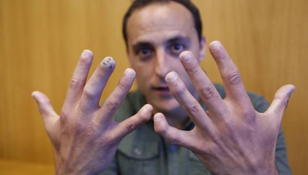 El dedo corazón de la mano derecha de Martínez de Irujo, aún con muestras de hematoma tras sufrir en  él una triple rotura, ha obligado a renunciar al de Ibero a este Manomanista.