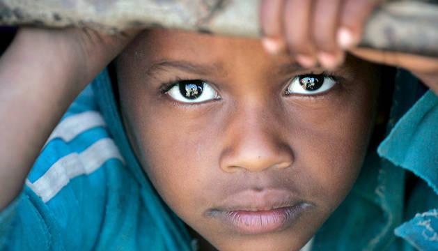 Un niño etíope malnutrido espera a ser atendido en una clínica de Médicos Sin Fronteras.