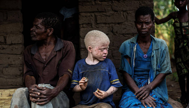 Malaui prohíbe la brujería para frenar los asesinatos de albinos