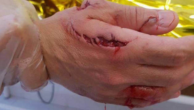 Un tiburón muerde a un bañista en una playa de Elche