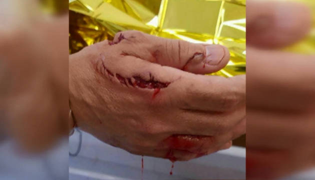Un tiburón ataca a un bañista en Arenales del Sol