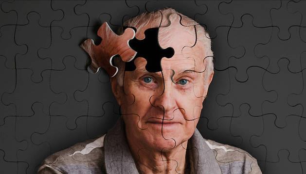 Imagen representativa de la enfermedad del Alzheimer.