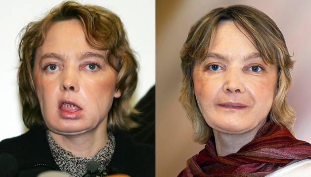Muere la mujer que recibió el primer trasplante mundial de cara