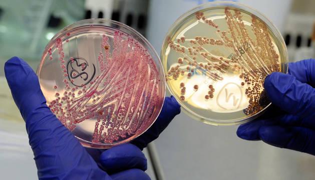 Cultivo de la bacteria E. coli.