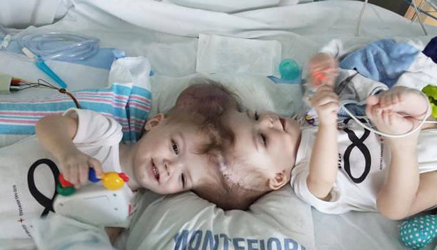 Separados con éxito dos gemelos siameses unidos por la cabeza