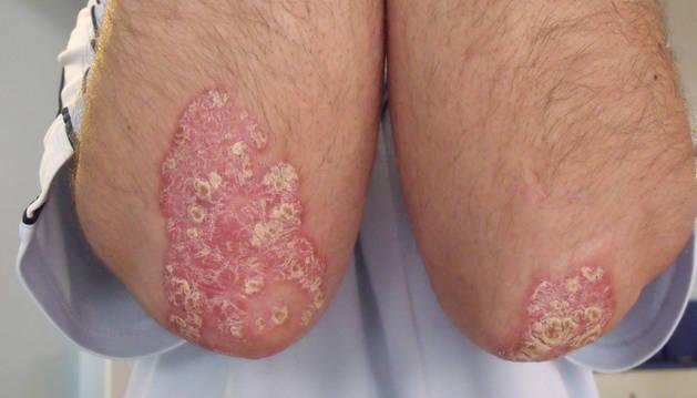 La psoriasis en las extremidades