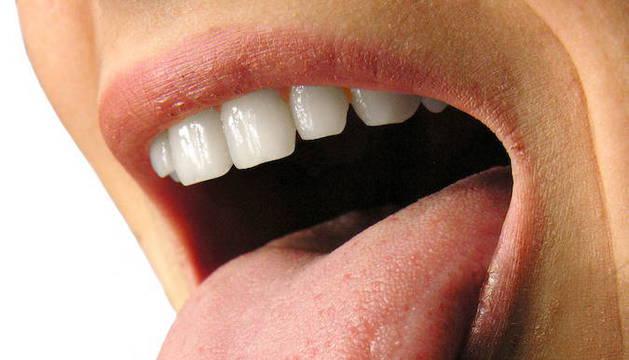 imagenes de causas de halitosis