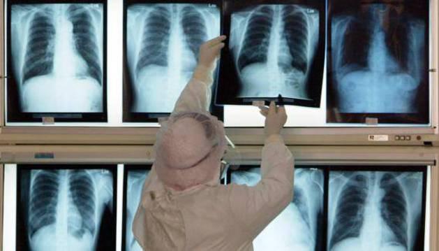 Una enfermera revisa las radiografías de pacientes afectados por neumonía.