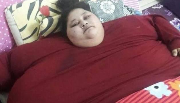 La egipcia Eman Ahmed Abd El Aty, de 36 años y un peso 500 kilos