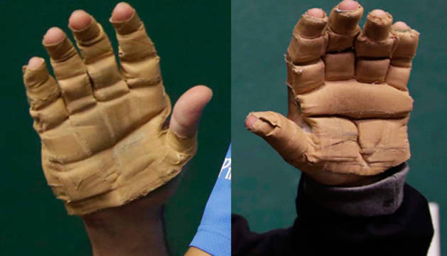 Las manos de Urrutikoetxea (izda.) y Bengoetxea (dcha.)