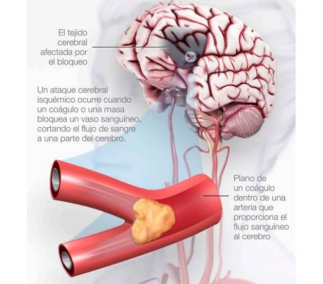 ¿Qué es una isquemia cerebral?