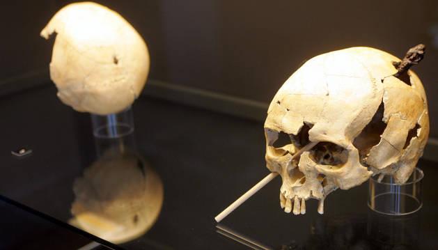 Un cráneo con una saeta de ballesta encontrado en Tiebas. La foto corresponde a la muestra La tierra te sea leve, que se celebró en el Museo de Navarra entre 2007 y 2008.