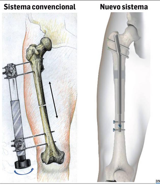 Imagen comparación entre el sistema convencional para realizar alargamientos óseos y el nuevo sistema.