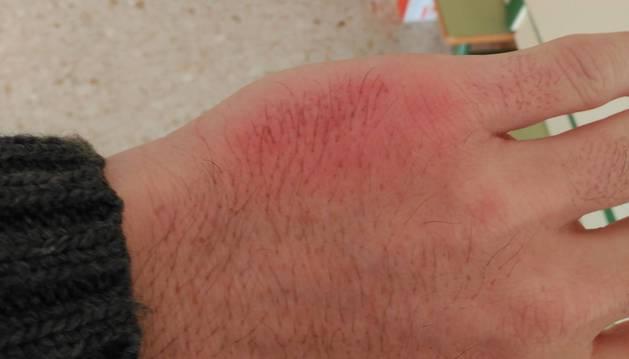 Imagen de la mano lesionada del profesor a causa de la violencia de un alumno.