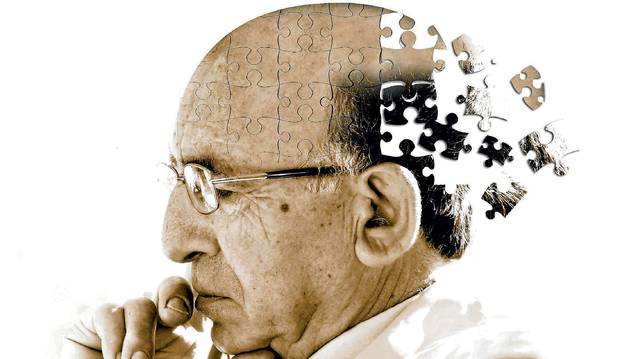 Imagen sobre el alzheimer.