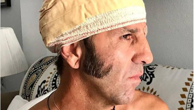 Juan José Padilla recibió 40 grapas en la cabeza tras la herida sufrida el pasado 7 de julio en Arévalo.