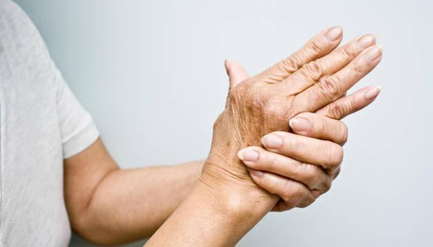 Identifican un nuevo gen asociado con la gravedad de la artritis reumatoide
