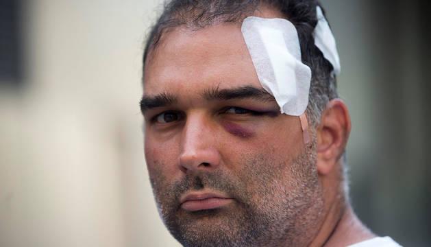 El turista estadounidense de origen cubano José Bravo, que fue agredido por un grupo de manteros en la plaza Cataluña de Barcelona.