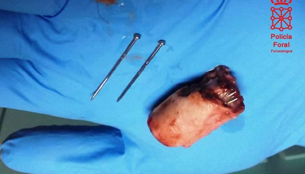 Trozo de comida y clavos extraídos del perro que ingirió las salchichas en Uharte Arakil.