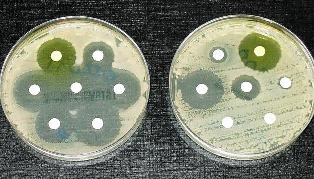 El resultando de una prueba de la resistencia a los antibióticos, que son los círculos blancos. En el plato de la izquierda los siete antibióticos han detenido el crecimiento de las bacterias, en el de la derecha sólo lo han hecho en tres casos.
