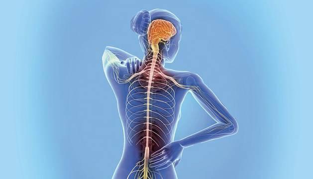 Fatiga, síntomas sensitivos y falta de equilibrio, principales síntomas de la esclerosis
