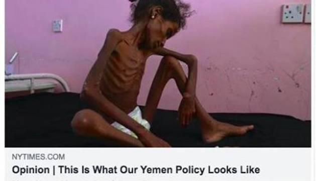 La imagen sobre la hambruna en Yemen censurada por Facebook