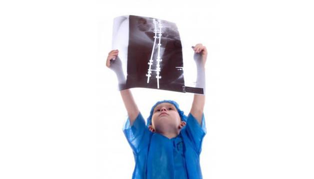Imagen recurso de una radiografía de un niño.