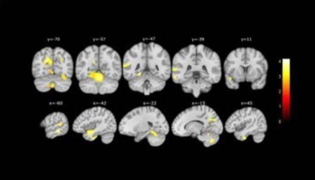 foto de Cambios en el cerebro detectados por el estudio de la Fundación Pasqual Maragall